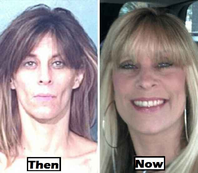 Drug Addicts Before And After