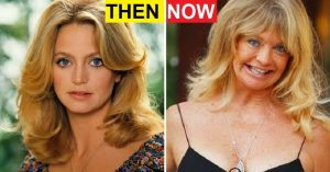 23 Terribly Aging Celebrities Then And Now Photos