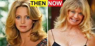 Terribly Aging Celebrities Then And Now Photos
