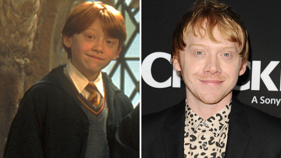 Rupert Grint As Ron Weasley Then And Now