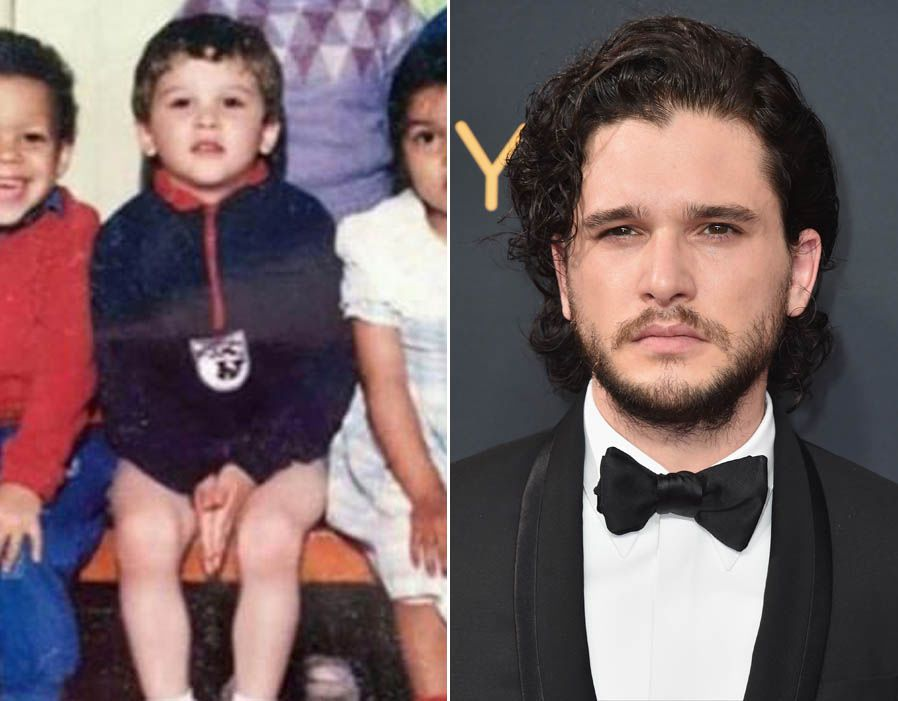 Kit Harington Childhood Vs Now