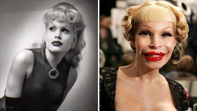 Amanda Lepore Plastic Surgery Gone Wrong