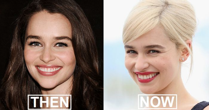 12 Celebrities Who Suddenly Changed Their Look And Are Unrecognizable