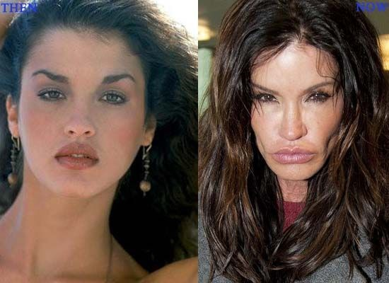 Janice Dickinson Plastic Surgery Gone Wrong