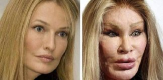 Jocelyn Wildenstein Plastic Surgery Gone Wrong