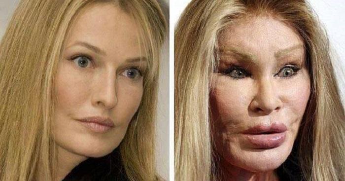 Jocelyn Wildenstein Plastic Surgery Gone Wrong