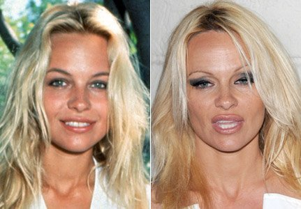 Pamela Anderson Plastic Surgery Gone Wrong