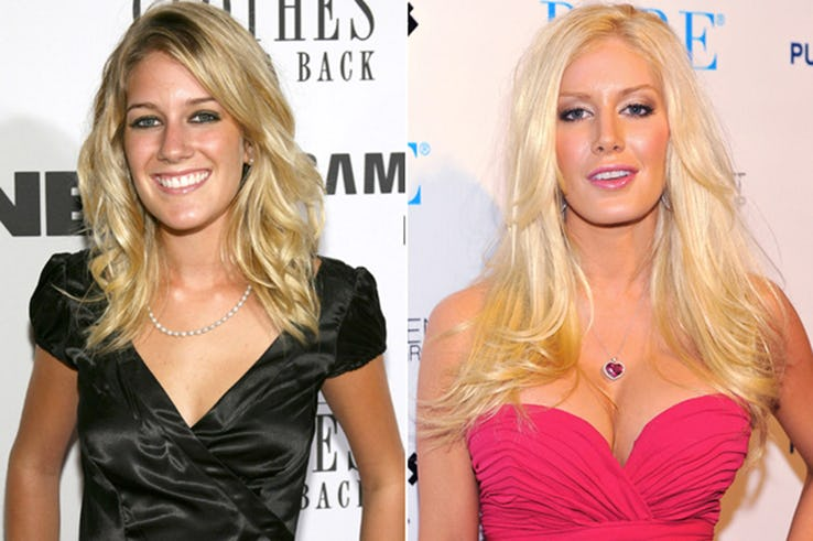 Heidi Montag Most Expensive Celebrity Transformations