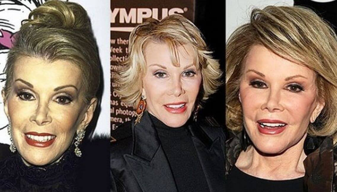 Joan Rivers Plastic Surgery Cost