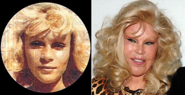 Jocelyn Wildenstein Most Expensive Celebrity Transformations