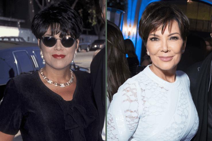 Kris Jenner Plastic Surgery Cost