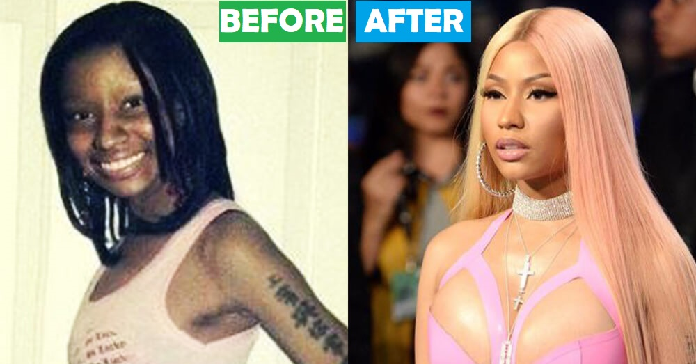 15 Most Expensive Celebrity Transformations In Hollywood