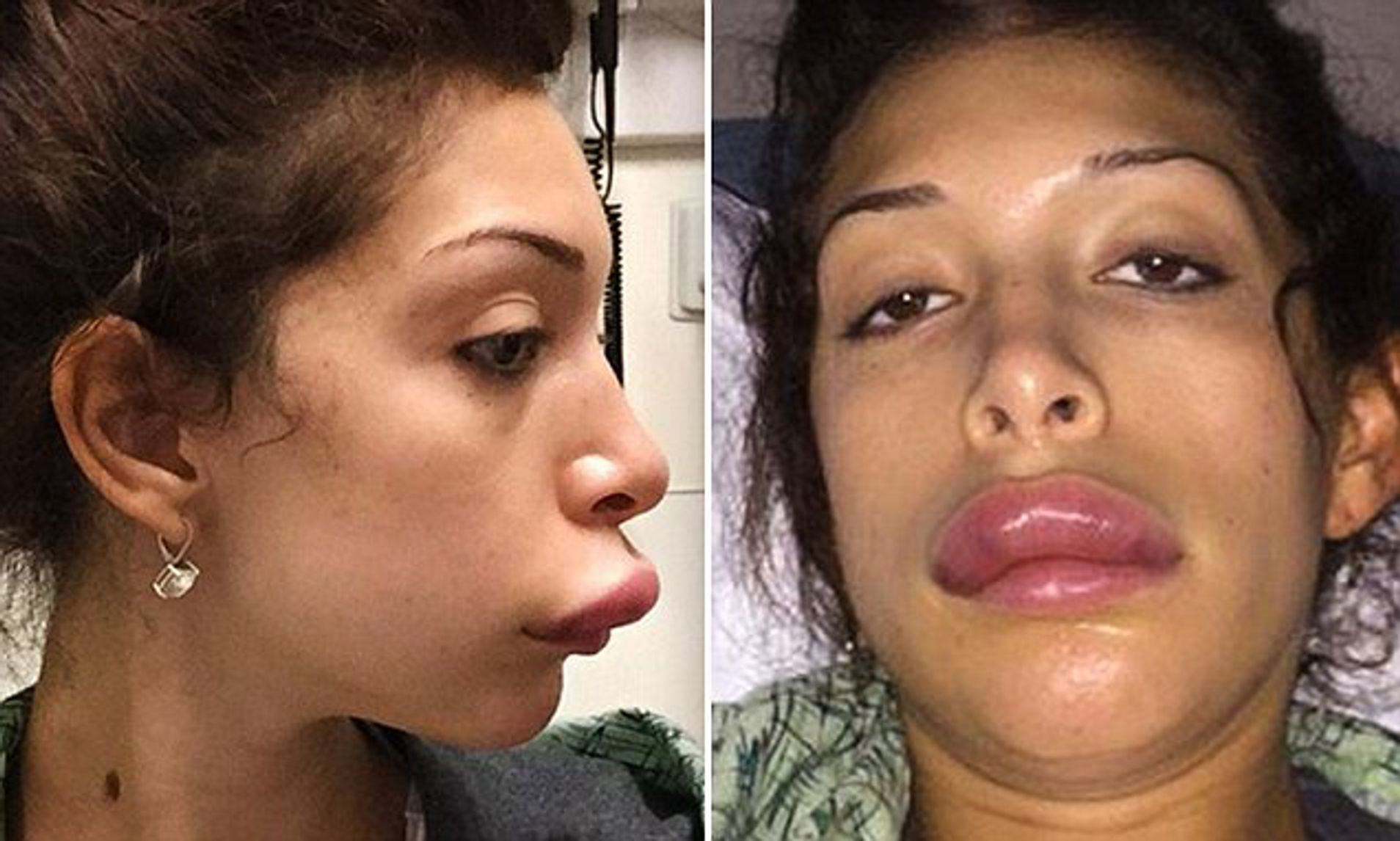 Celebrities Who Got Bad Lip Injections